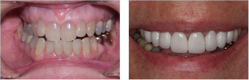 Misaligned and dark teeth